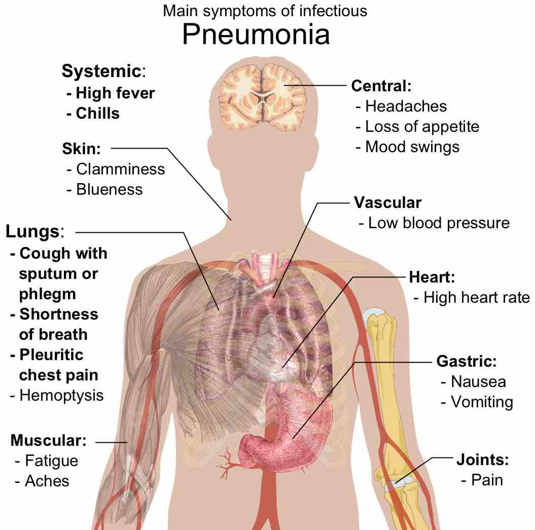 Viral pneumonia: symptoms and treatment. Viral pneumonia: symptoms in children 85